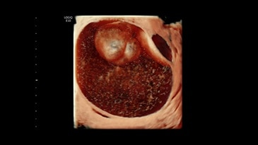 Ovarian Mass 3D Render with HDlive™, RIC5-9-D