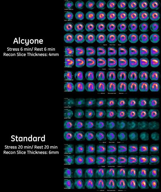 lear-medicine-cardiac scanners-discovery nm 530c-discovery-nm-530c-case-study_thallium.jpg