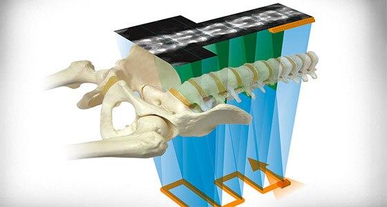 Bone Health and Metabolic Health