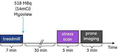 ine-cardiac scanners-discovery nm 530c-discovery-nm-530c-case-study_prone_stress_graph.jpg