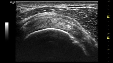 Supraspinatus Tendon, ML6-15-D
