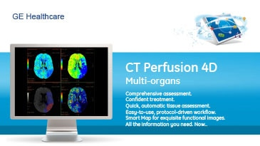 pec-sheets-ct-perfusion-4d-multi-organs-gehc-datasheet_aw-ct-perfusion-4d-multi-organs