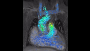 3D cardiac anatomy, function, and flow in one free-breathing, 8 min scan