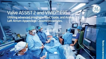 gs-booklet_-_benefits_of_valve_assist_2_and_vivid_e95_for_laac_procedures_-__jb48745xx_pdf