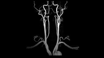 Vascular and Cardiac Imaging