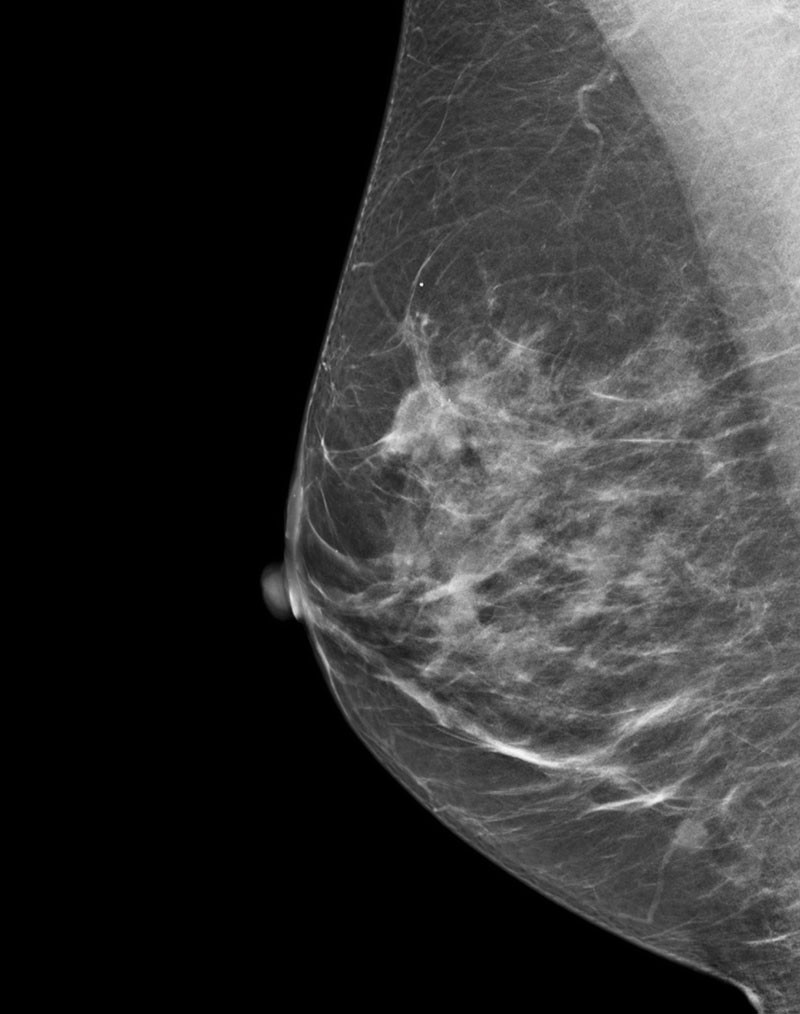 es-mammography-mammography-new-seno-claire-senoclaire_breast-imaging-sensitivity-case3.jpg