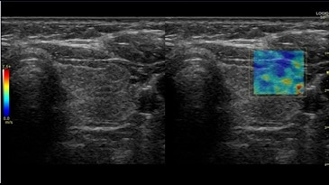 Thyroid 2D Shear Wave Elastography, 9L-D
