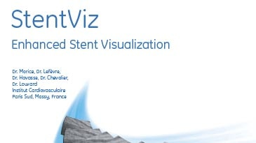 tems-innova-stentviz-enhanced-stent-visualization-clinical-cases-from-icps-massy-28229_pdf