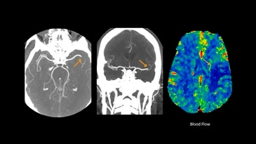 Cerebral CTA and perfusion study for stroke evaluation
