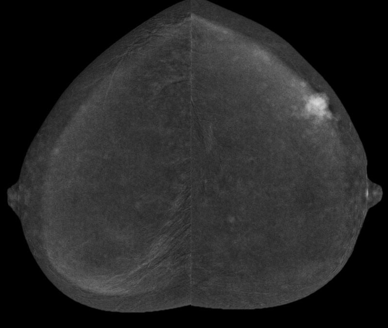 aphy-mammography-new-seno-bright-hd-thumbnails-senobright-hd_breast-imaging-thumbnail1.jpg
