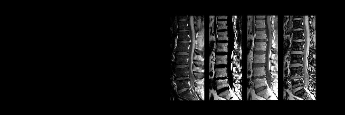 product-product-categories-magnetic-resonance-imaging-spine-imaging-ideal-spine_ideal.jpg