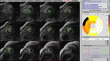 advanced visualization cardiacvx clinical.