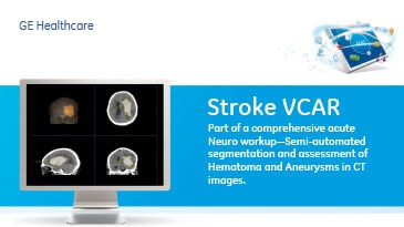 ced-visualization-product-spec-sheets-stroke-vcar-gehc-datasheet-stroke-vcar-pds-short_pdf