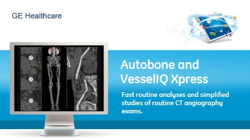 spec-sheets-autobone-vessellq-xpress-ct-gehc-datasheet_aw-autobone-and-vesseliq-xpress_pdf