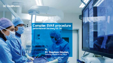 ay-brochures-evar-ge-healthcare-brochure-complex-evar-performed-with-discovery-igs-730_pdf