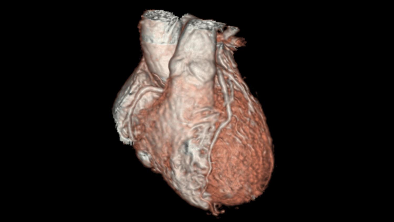 3D heart pediatric imaging clinical