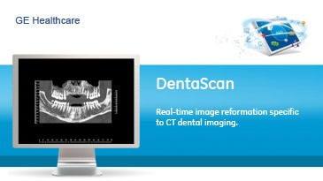 ducts-advanced-visualization-product-spec-sheets-dentascan-gehc-datasheet_aw-dentascan_pdf