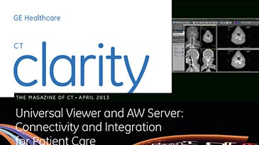 ucts-advanced-visualization-testimonials-gehc-ct-clarity_the-magazine-of-ct_april-2013_pdf