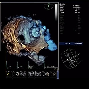 gories-interventional-x-ray-igs-for-interventional-cardiology-assess-valve-assist-laac.jpg