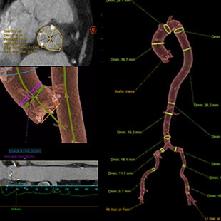 Valve ASSIST 24  for Transcatheter Aortic Valve Implantation: Plan