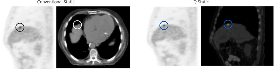 product-product-categories-magnetic-resonance-imaging-signa petmr-Motion Correction.png