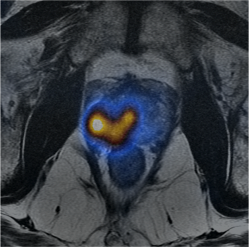 product-product-categories-magnetic-resonance-imaging-signa petmr-InVivo 3 -small.png